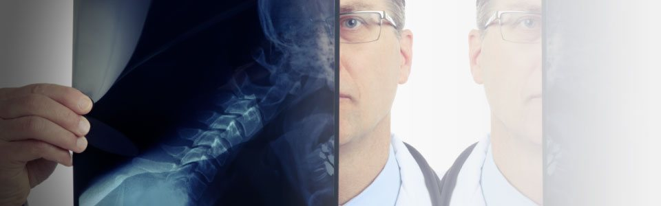 Photo of a doctor looking at a neck xray